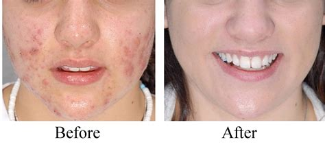 acne treatment picture 6