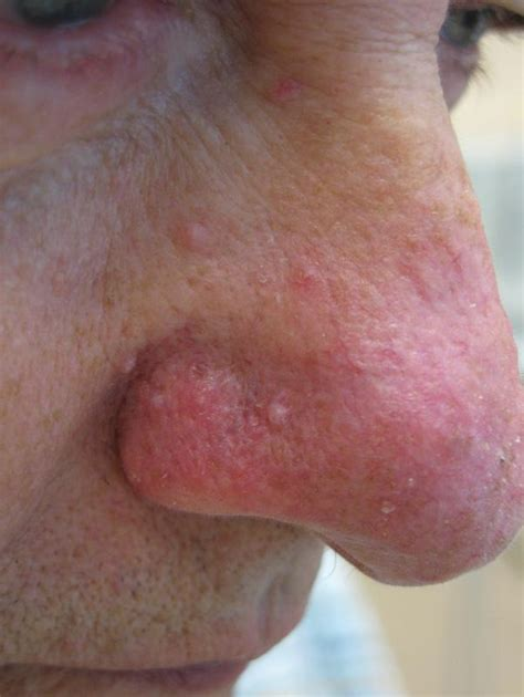 will minocycline treat boils picture 2