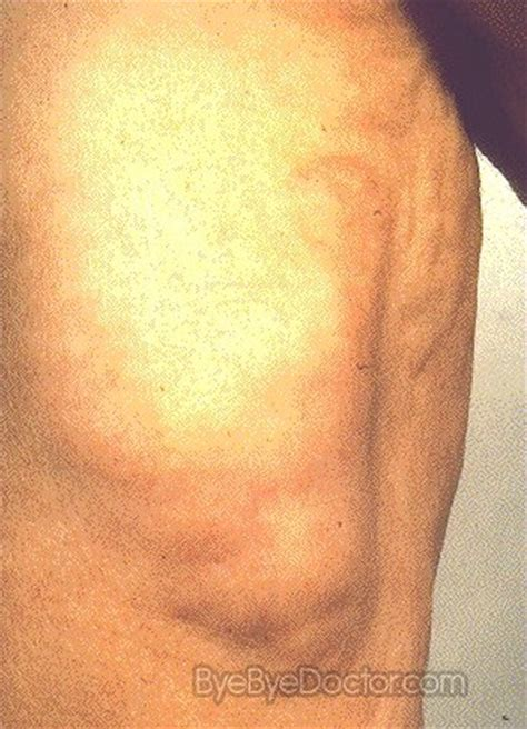 cause of muscle pain in thighs picture 11
