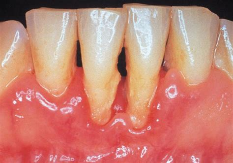 teeth dry pockets picture 5
