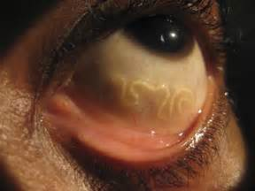 skin parasites picture 6