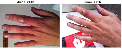 skin infection on knuckle picture 13