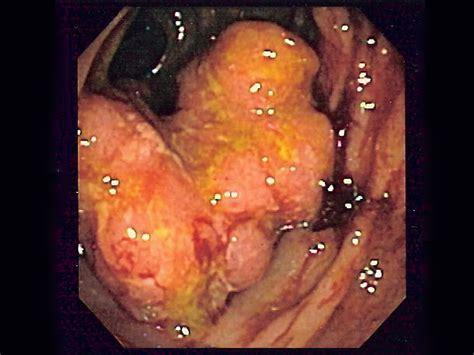 colon cancer surgery picture 2