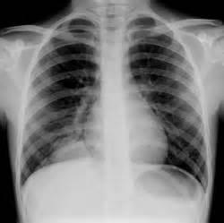 Bacterial pneumoniam picture 1