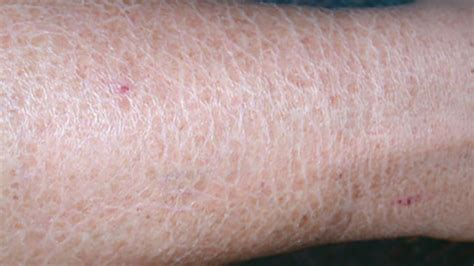 causes of changes of skin condition picture 6