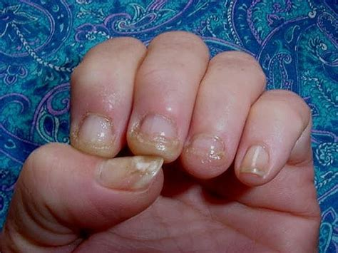 nail fungus from artificial nails picture 3