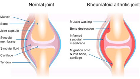 arthritis in every joint of the body picture 14