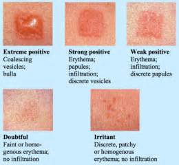 false negative with skin allergy test picture 2
