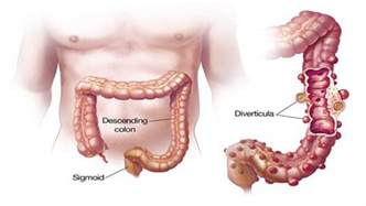 infection in the intestines or colon picture 5