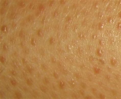 spots underneath skin picture 11