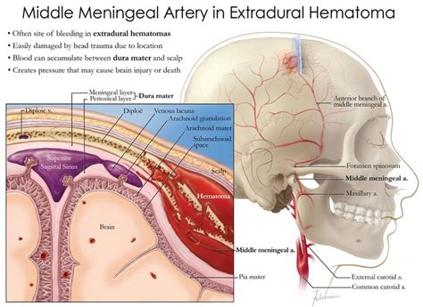infant bacterial meningitis strokeremove half of brain picture 16