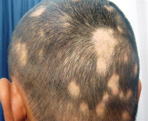 alopecia hair loss picture 3