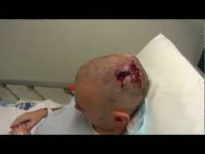 removing oil filled cyst on scalp picture 10