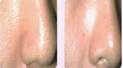 microdermabrasion for acne scars picture 13