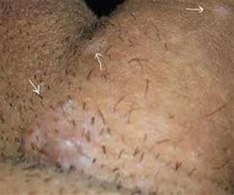 genetal warts on a woman picture 2
