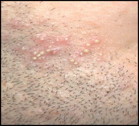acidophilus for skin boils picture 10