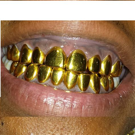 all cinds of teeth grizs gold and silver picture 19