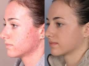 acne mark removal picture 13