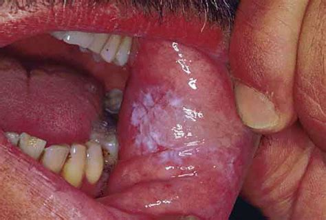 yeast infection in mouth picture 2