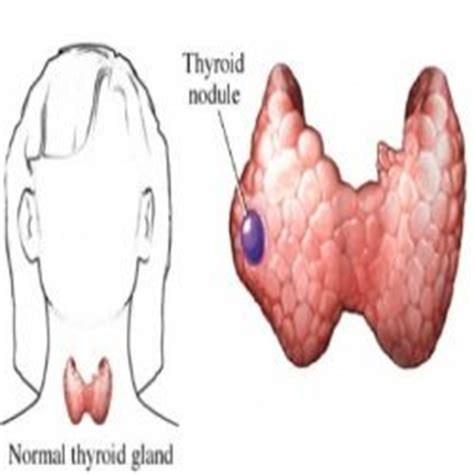 holistic cure thyroid nodules picture 13