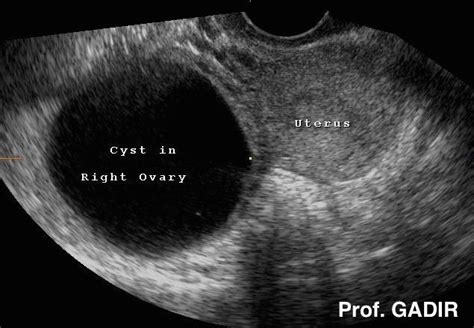 cyst on the liver picture 17