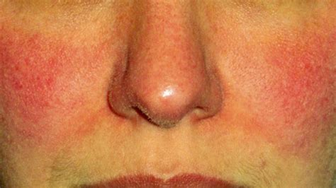 rosacea on nose picture 7