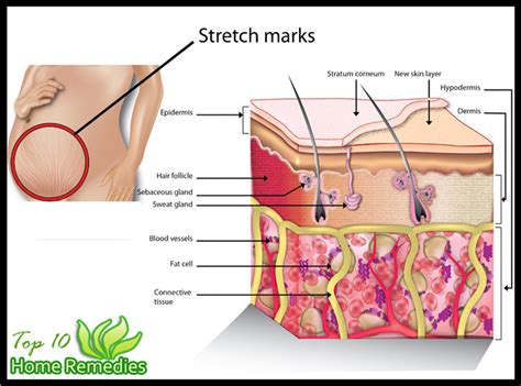 how to remove stretch mark naturally picture 6