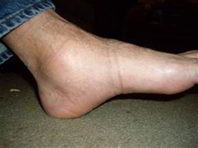 Swollen ankles medical symptoms blood pressure picture 22