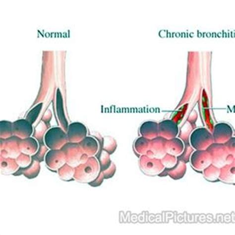 cheap bronovil picture 18