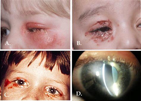 pediatric herpes simplex picture 13