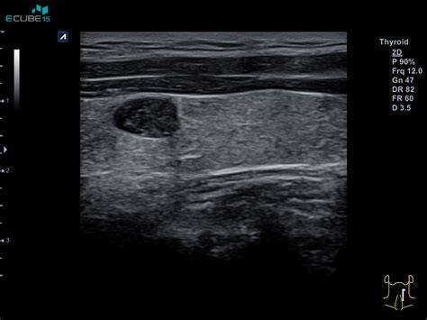 colloid nodule in solitary thyroid nodule picture 10