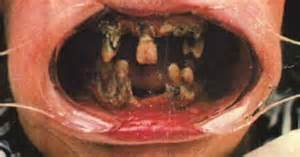 metropolitan ins co's hygiene of the mouth and picture 10
