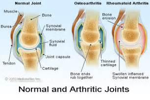 osteoarthritis picture 3