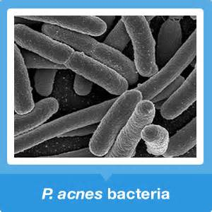 does herbs kill good bacteria picture 11