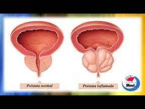 sintomas ng prostate cancer picture 2