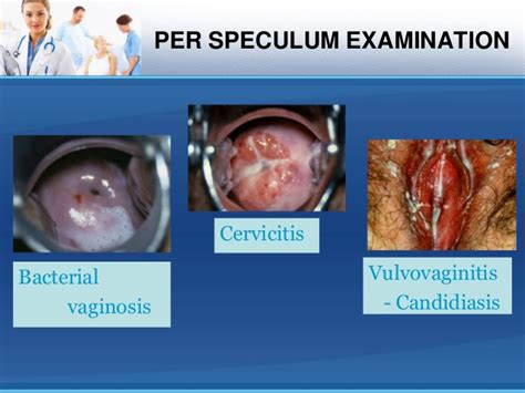 bacterial vaginal infection picture 3