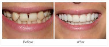 crowns or caps for front teeth that have picture 10