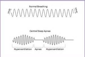 central sleep apnea picture 11