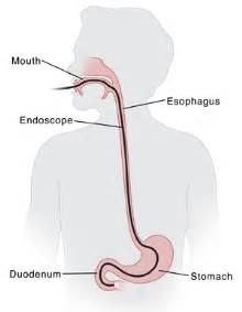gastrointestinal endoscopy picture 14