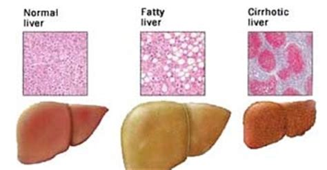 fatty liver exercise picture 7