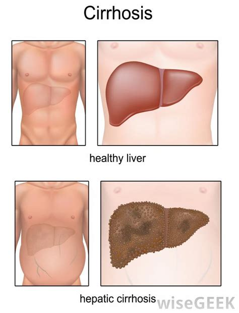 alt and liver function picture 10