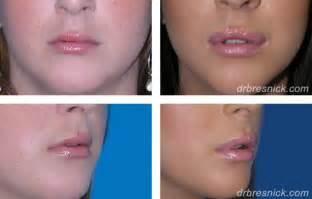 lip enhancment surgery picture 9