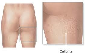will tanning cure cellulite picture 7