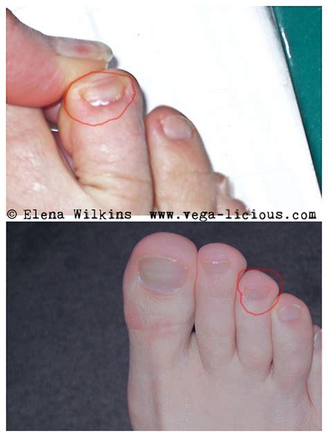 cure toenail fungus picture 15