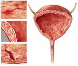 full bladder pain picture 22