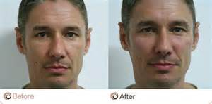 male enhancement before after pictures picture 6