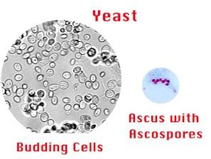 ascus yeast infection picture 3
