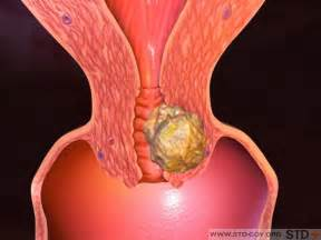 burning bladder picture 1