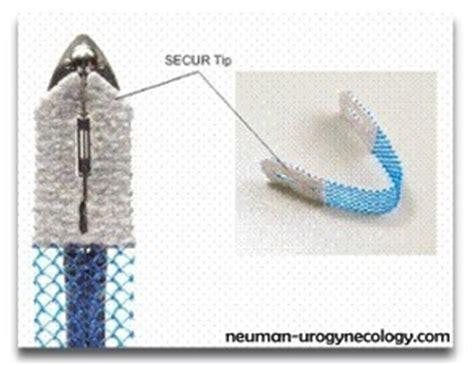 pigskin bladder sling problems picture 7