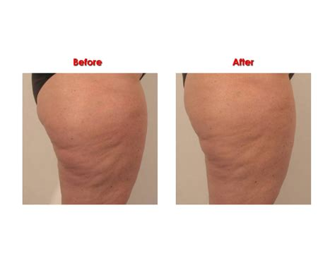wrinkle skin after hysterectomy picture 7